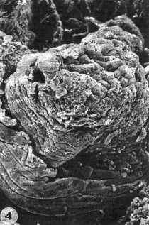 verkleinde nier